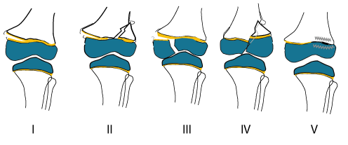 Salter Harris fracture and its types