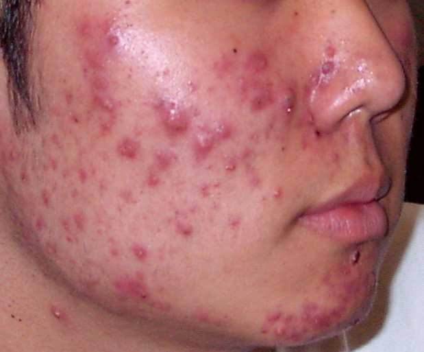 Acne Vulgaris treatment pic