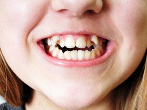 crooked teeth