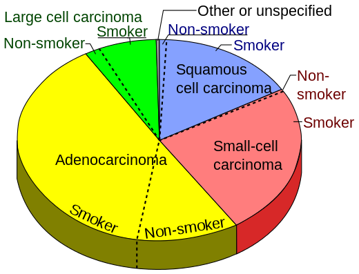incidence of small cell lung carcinoma