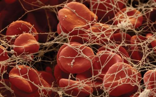 thrombolytic vs fibrinolytic vs anticoagulant agents
