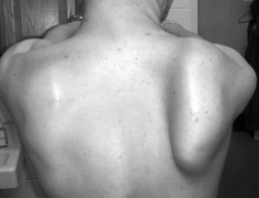 winging of scapula